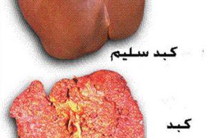 أسباب وأعراض سرطان الكبد وعلاجة