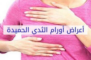 أنواع أورام الثدي الحميدة